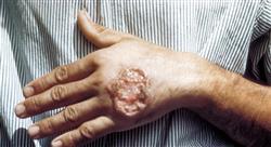 formacion microbiología en antibioticoterapia