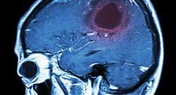 diplomado tratamiento radioterápico de tumores del sistema nervioso central (adultos)