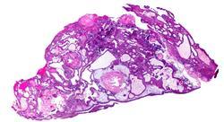 formacion tratamiento radioterápico de tumores del sistema nervioso central (adultos)