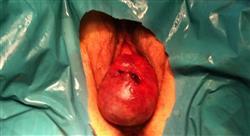 diplomado anatomía quirúrgica femenina