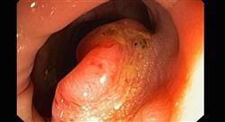 diplomado tratamiento radioterápico de tumores digestivos