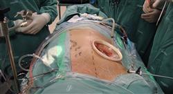 curso patología uterina benigna y disgenesias