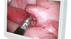 formacion electrocirugía e instrumentación
