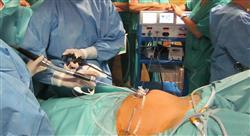 curso cirugía ultra mini invasiva y robótica en ginecología