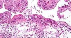 formacion cirugía endoscópica en oncología ginecológica