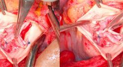 posgrado cardiopatías miocardiopatías y tumores en la edad pediátrica