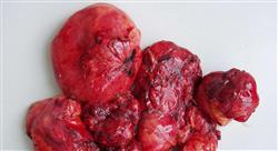 formacion diagnóstico y estadificación en oncología torácica