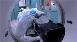 diplomado tratamiento del carcinoma no microcítico de pulmón