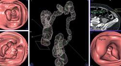 maestria oncología digestiva