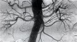 formacion ecografía clínica vascular