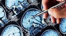 curso actualización en consulta neurológica