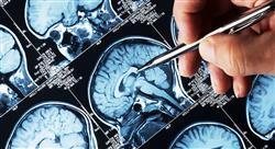 curso malformaciones alteraciones cromosómicas y otras alteraciones genéticas del sistema nervioso central