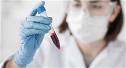 estudiar tumores hemolinfoides sangre médula ósea y ganglios linfáticos