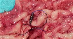 maestria actualización en cirugía bariátrica
