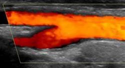 especializacion online ecografía torácica y vascular