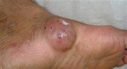 posgrado enfermedades tropicales micóticas