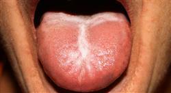 formacion infecciones del sistema urinario y de transmisión sexual