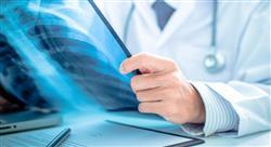 curso esclerosis sistémica