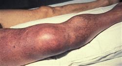 posgrado síndrome antifosfolipídico