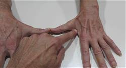 formacion miopatías inflamatorias idiopáticas