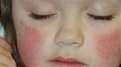 cfc online dermatología pediátrica