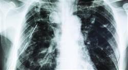 formacion urgencias respiratorias en atención primaria