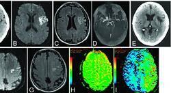 diplomado urgencias neurológicas en atención primaria
