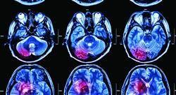formacion urgencias neurológicas en atención primaria