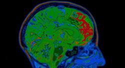 formacion neurociencias para médicos