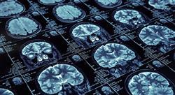 estudiar neuroanatomia para médicos