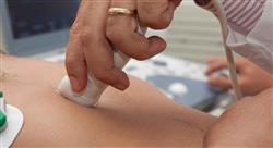 diplomado hipertensión arterial y enfermedad tromboembólica venosa relacionada con terapias oncológicas
