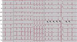 posgrado tratamiento cardioprotector y manejo del paciente complejo en cardiotoxicidad