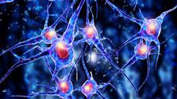 2 trastorno sueno cafaleas neuralgia