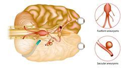 curso ictus trastornos neurovasculares s Tech Universidad