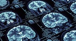 curso trastornos inflamatorios desmielinizantes sistema nervioso s