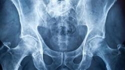 formacion trastornos inflamatorios desmielinizantes