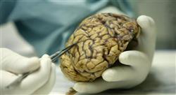 maestria oncología neurológica