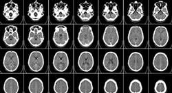 maestria online oncología neurológica