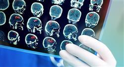 master oncología neurológica