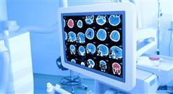 especializacion imagen clínica en patología del sistema nervioso central cabeza y cuello en emergencias y cuidados críticos
