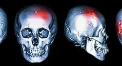 especializacion online imagen clínica en patología del sistema nervioso central cabeza y cuello en emergencias y cuidados críticos
