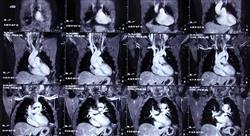 estudiar imagen clínica en patología respiratoria y cardiovascular en emergencias y cuidados críticos