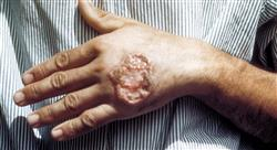 estudiar infecciones víricas bacterianas y micóticas