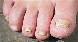 especializacion infecciones presentes en las enfermedades