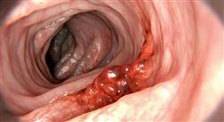 posgrado tumores de colon y recto