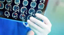 estudiar manejo de los tumores cerebrales en edad pediátrica