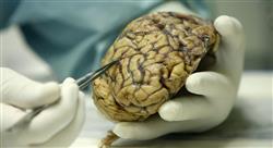 experto universitario manejo de los tumores cerebrales en edad pediátrica