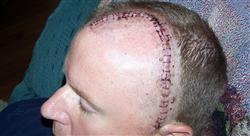 especializacion online neurocirugía y manejo radioterápico de los tumores cerebrales