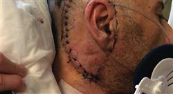 formacion neurocirugía de los tumores cerebrales