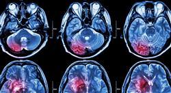 formacion manejo de las metástasis cerebrales y leptomeníngeas